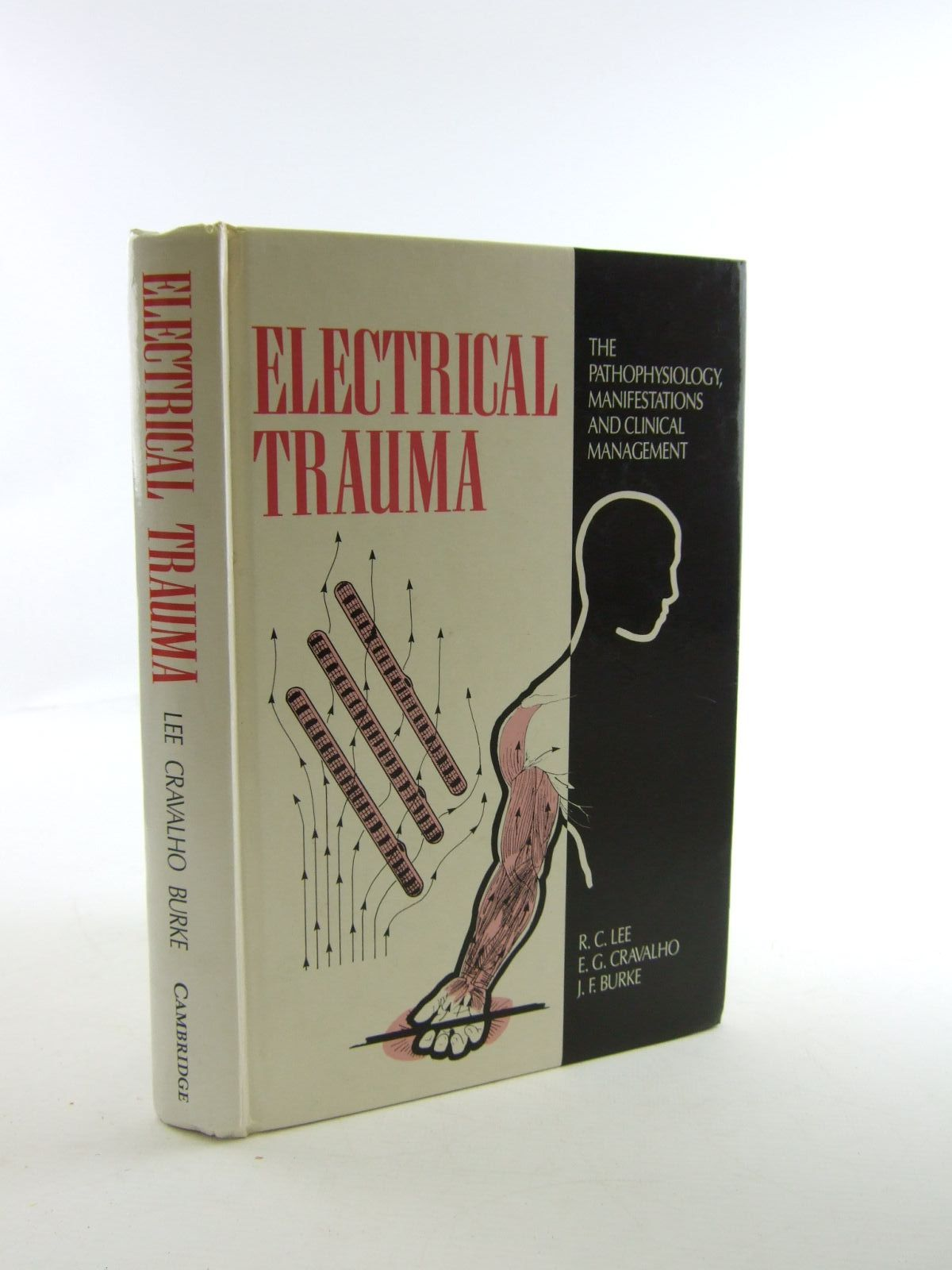 Photo of ELECTRICAL TRAUMA THE PATHOPHYSIOLOGY MANIFESTATIONS AND CLINICAL MANAGEMENT